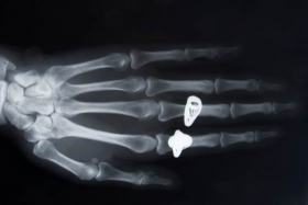 an x ray of a hand wearing rings